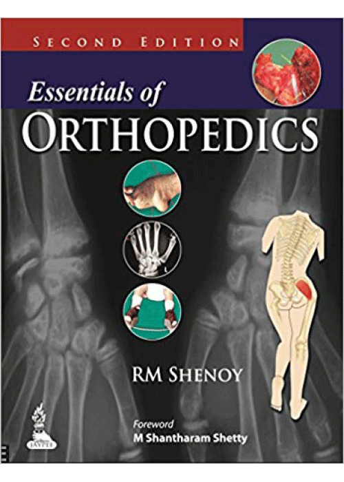Essentials of Orthopedics